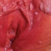 como-eliminar-condilomas-acuminados-remedios-caseros-verrugas04