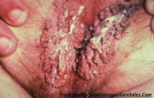 como-eliminar-verrugas-genitales-mujer-hombres-tratamiento07